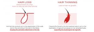 Hair Fall Process - Crescina