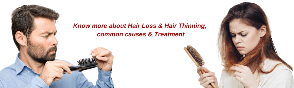 Causes of Hair Loss, Hair Thinning & Treatment